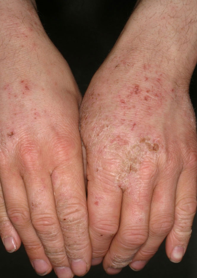 Orthoergisch eczeem (irritant contact dermatitis)