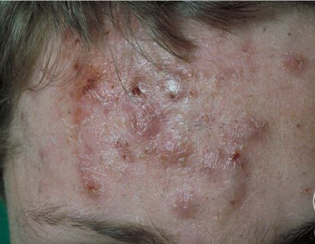 Draining Cystic Acne