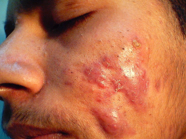 Bumps on Scalp, Itchy, Lumps, Large, Small, Cyst, Painful ...