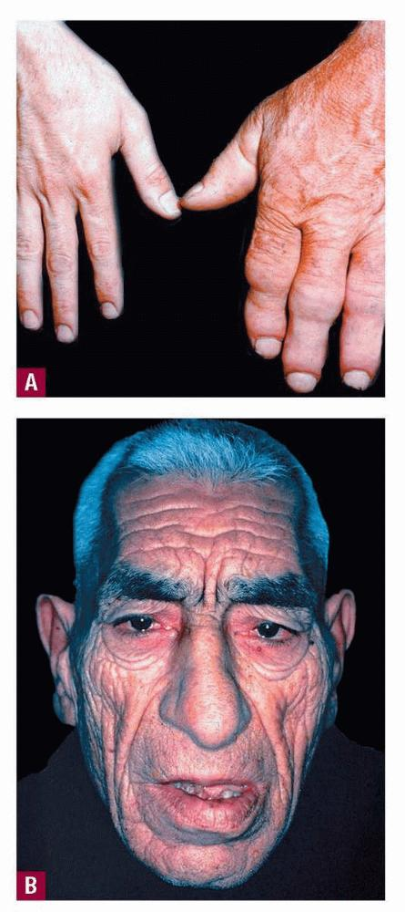 Acromegaly: What you should know