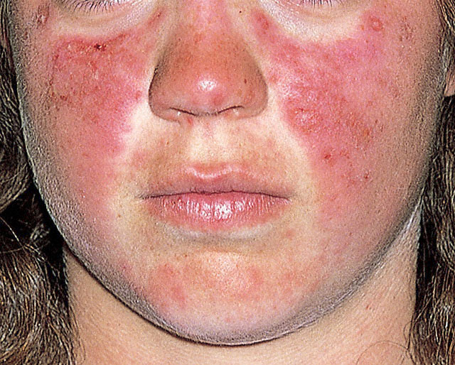 Subacute Cutaneous Lupus Natural Treatment