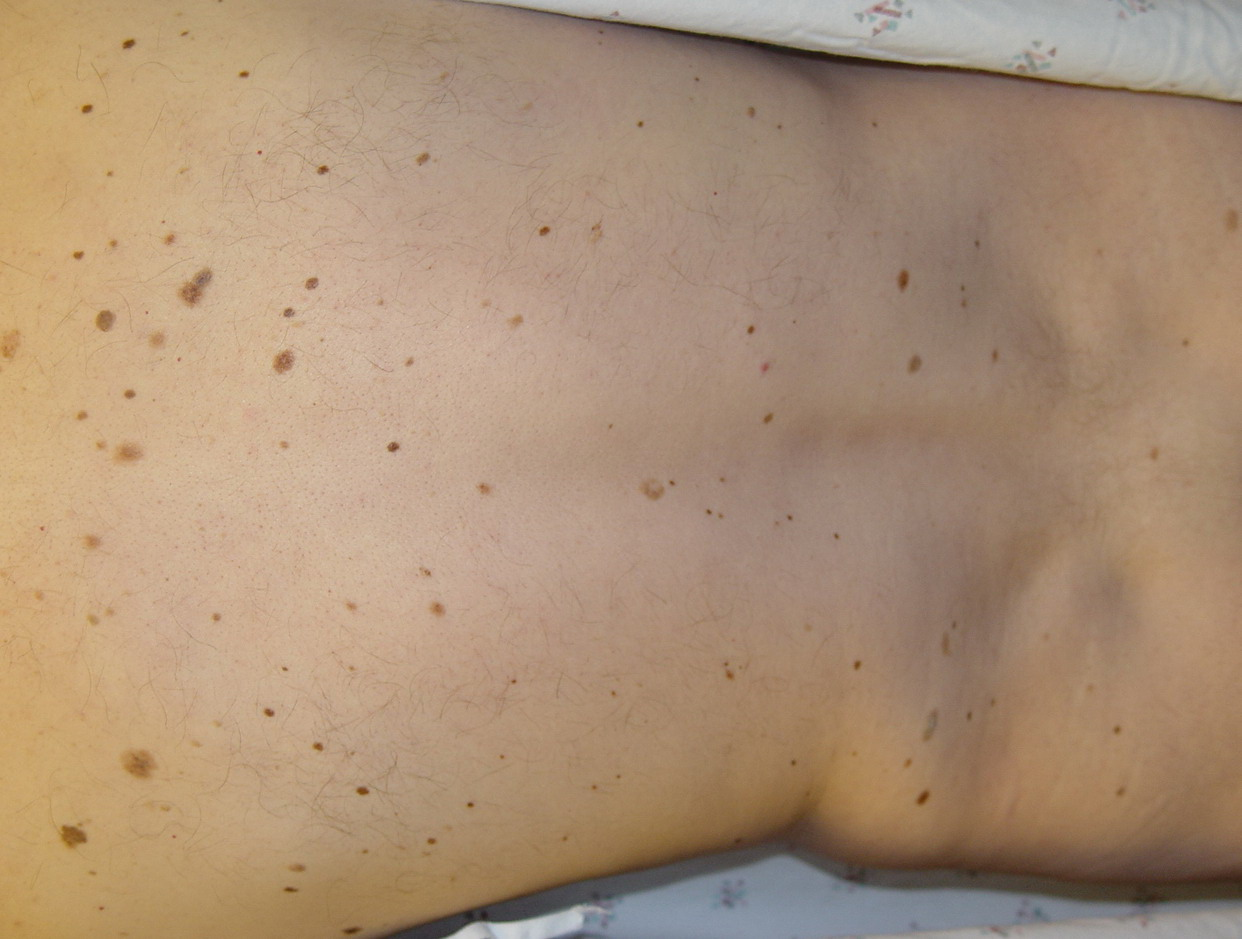 Pictures Of Normal Moles