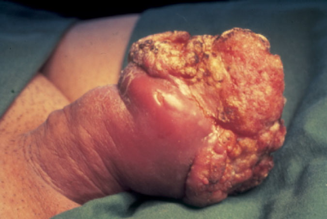 Image result for carcinoma penis