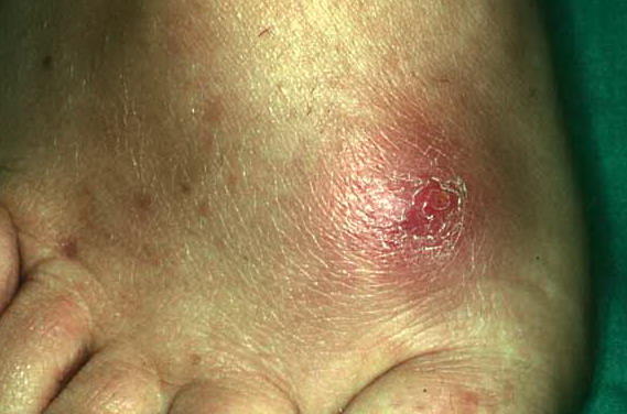 Cellulitis and abscess of buttock - RightDiagnosis.com