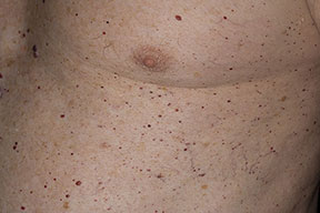 Hemangioma As Related To Cherry Angioma Pictures