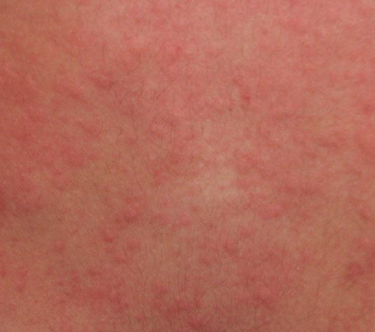 Cholinergic urticaria (hives): causes, symptoms, pictures ...
