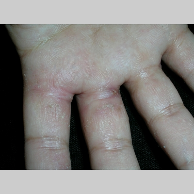 eczema what causes it