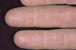 eczema on body treatment