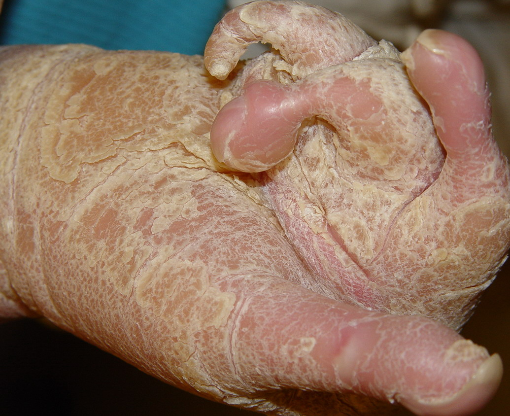 Sarcoid - close-up of the skin lesions: MedlinePlus ...