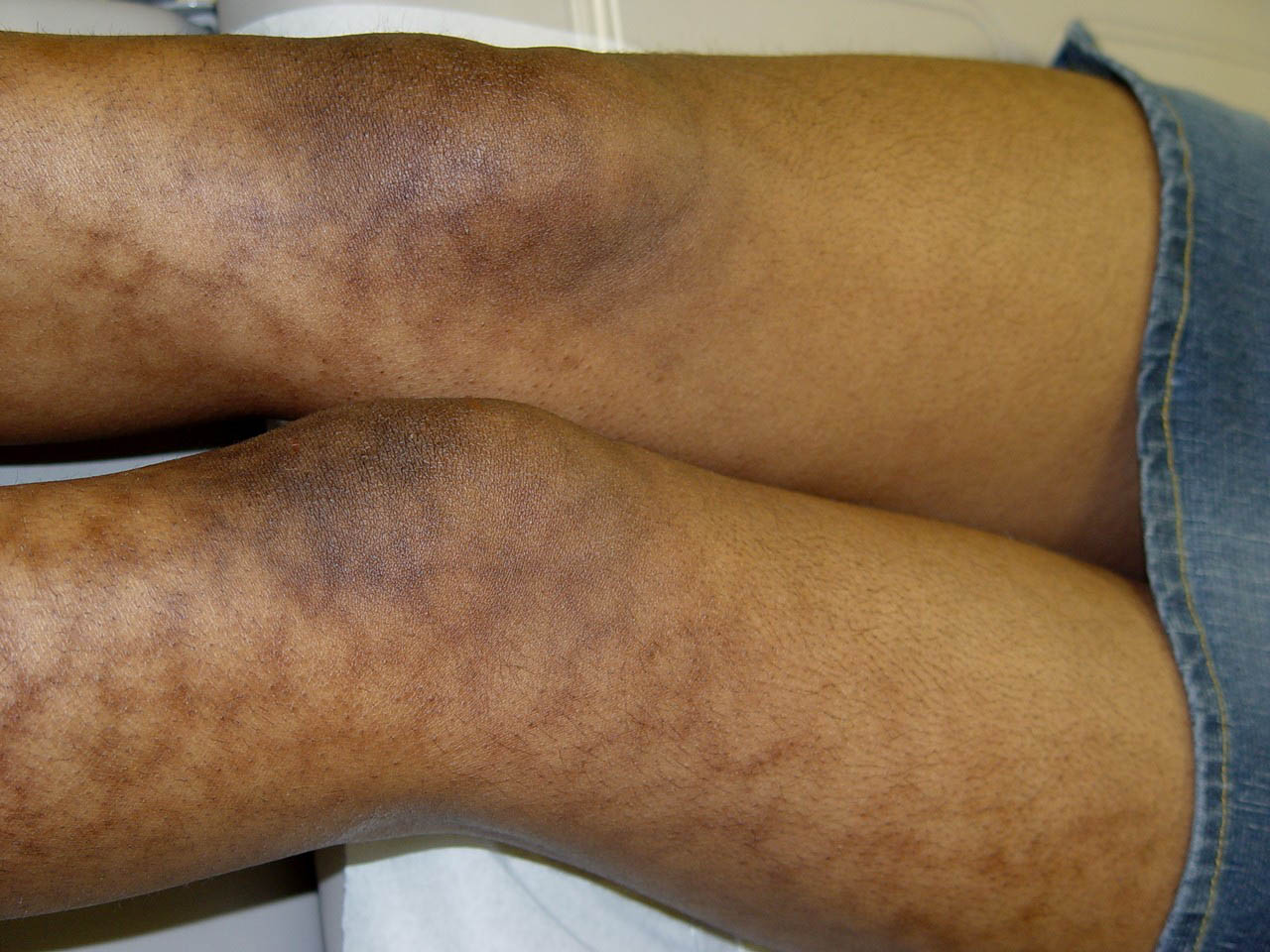 Erythema Ab Igne - Diseases & Conditions - Medscape Reference