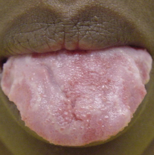 geographic tongue pic #10