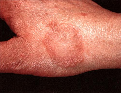 Diagnosis and Management of Granuloma Annulare - American ...