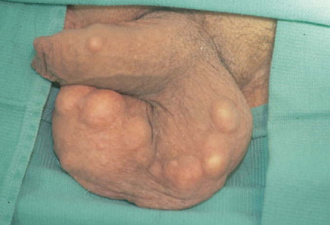 Sebaceous Cyst On The Penis 116