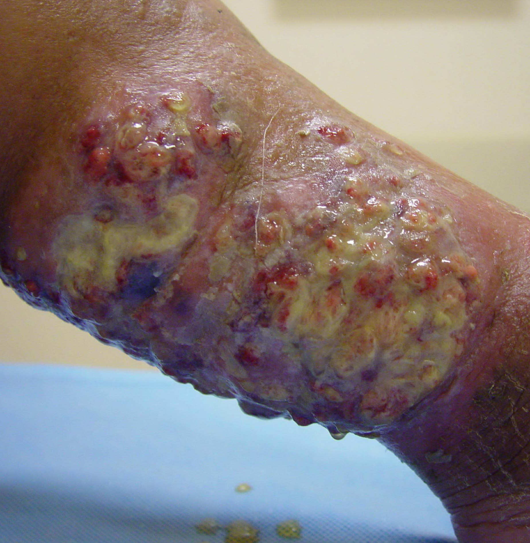 Mycetoma(Bacterial and Fungal Disease) | Fungus