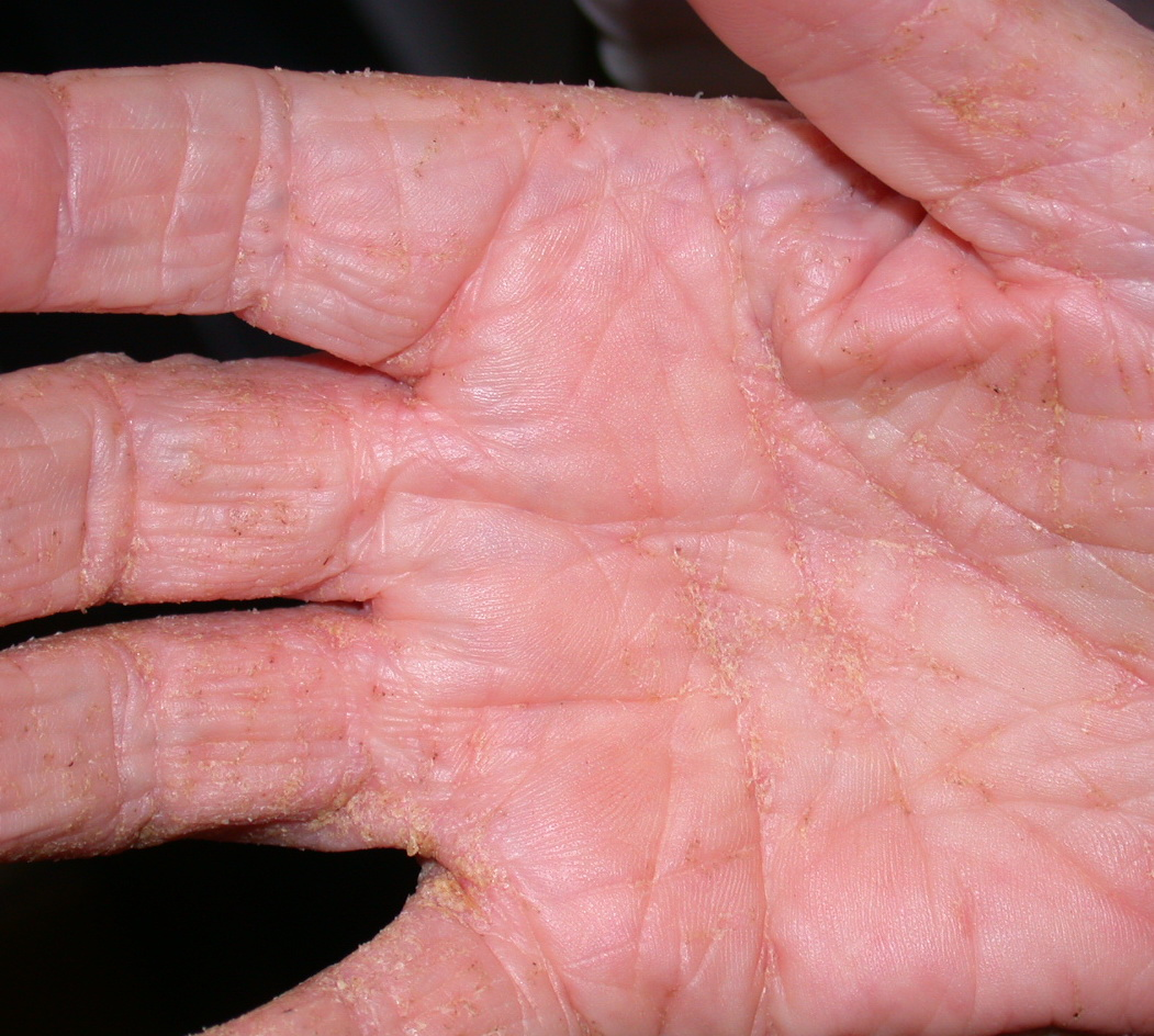 Scabies Symptoms - Scabies Pictures