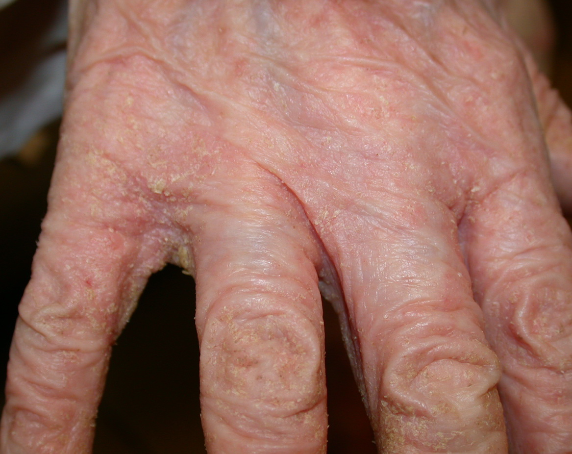 Scabies: Symptoms, Pictures, and Diagnosis - Healthline