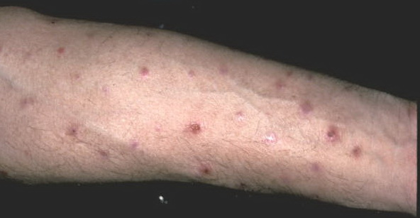 Mesenteric panniculitis: Various presentations and ...