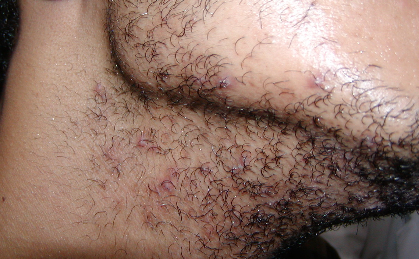 Herpes pictures on shaft penile