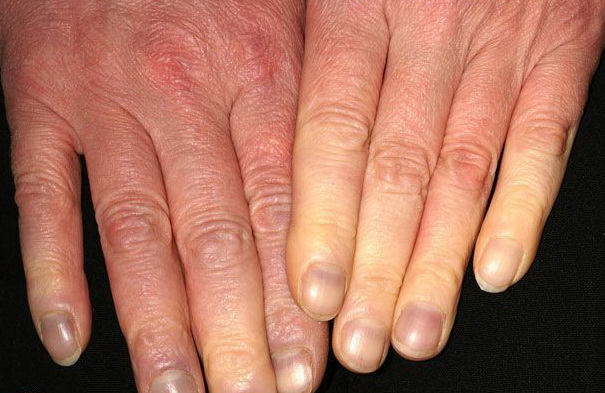 Raynaud's Phenomenon Directory: Find News, Features, and ...