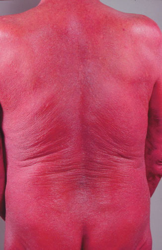 sezary syndrome pictures