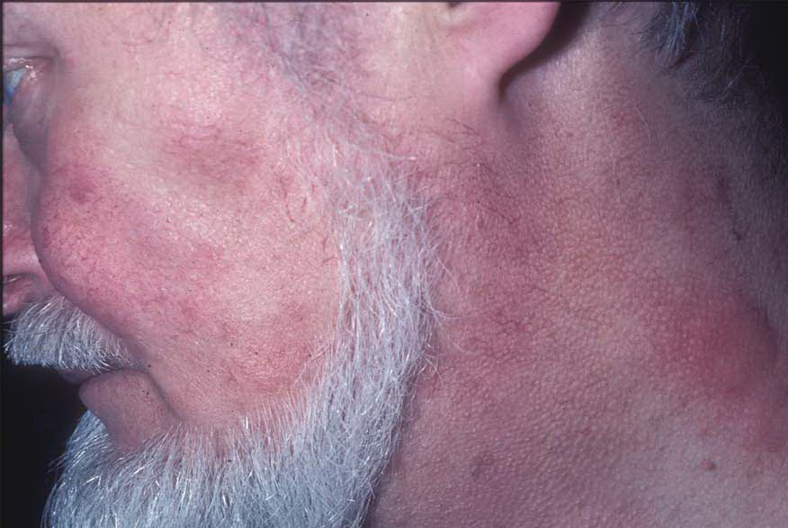 Acute Cutaneous Lupus Erythematosus (ACLE): Practice ...