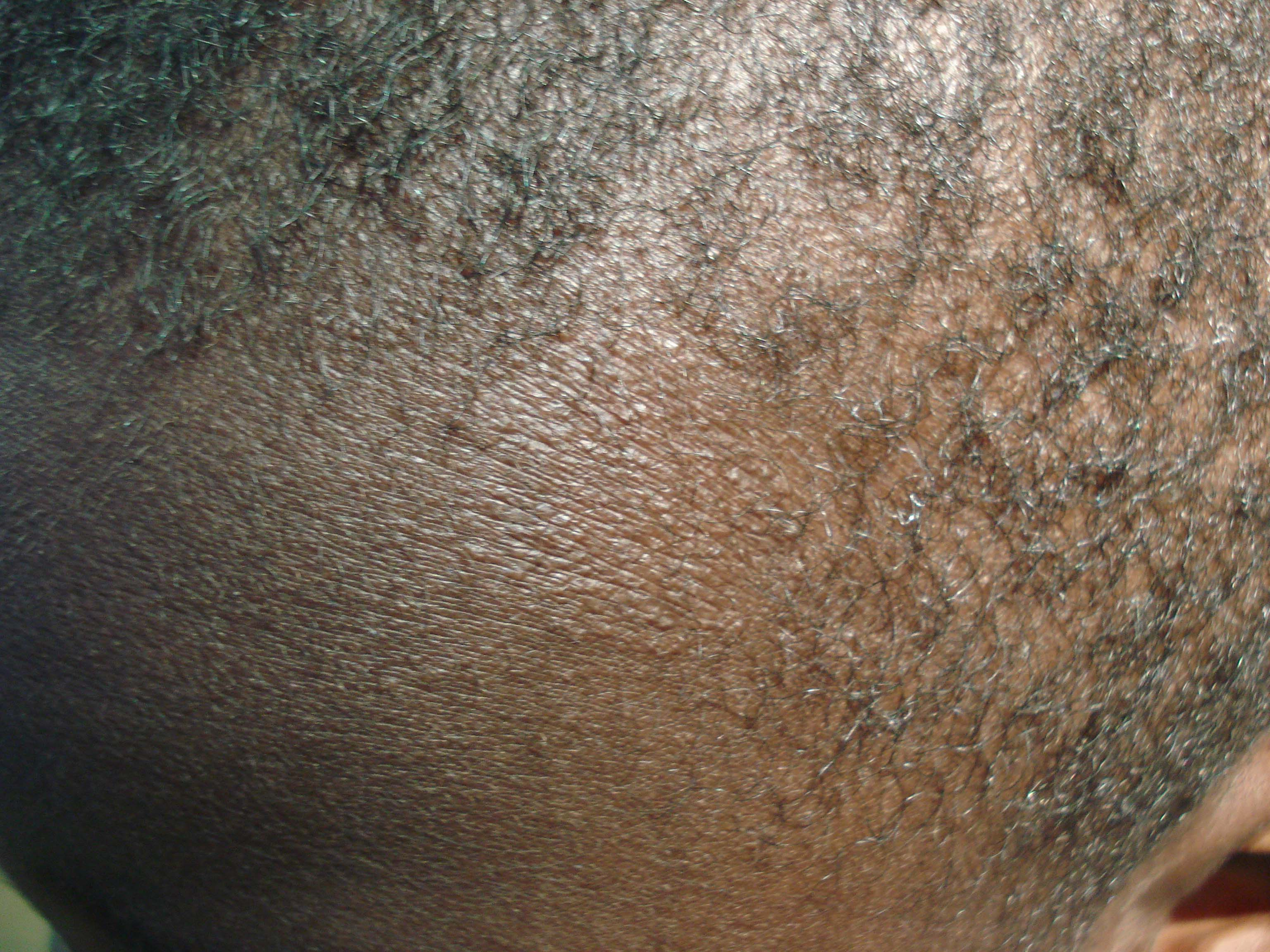 Fungal Skin Infections Common Treatment & Care
