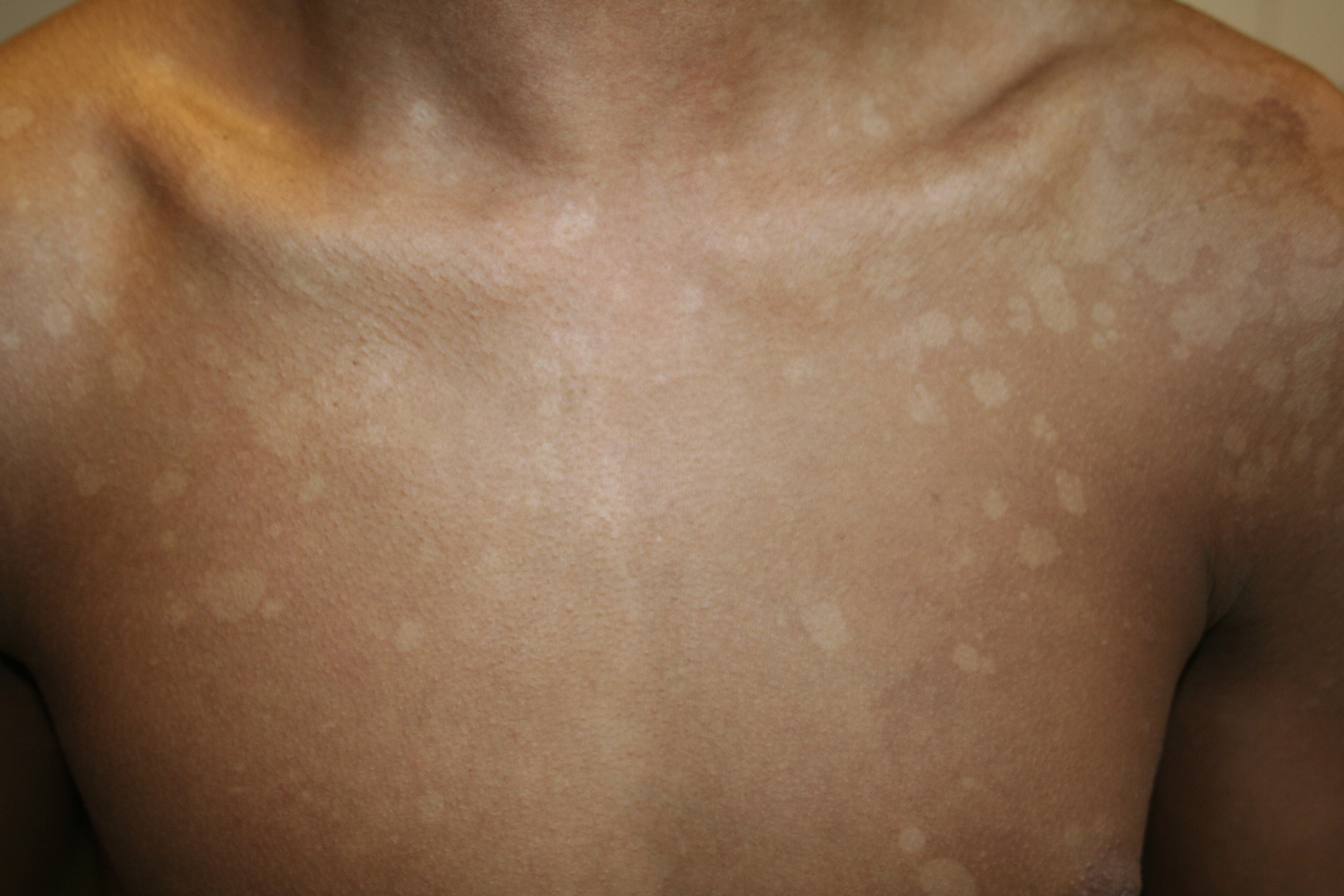 how to stop getting spots on your back