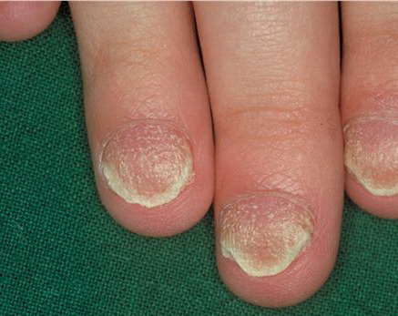 Twenty Nail Dystrophy - American Osteopathic College of ...