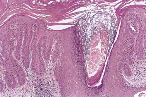 Hypertrophy Of Labia Minora. hypertrophic arthropathy of